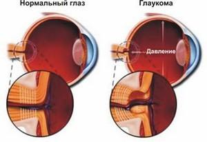 Давление глазного яблока при глаукоме