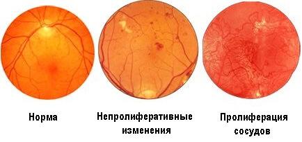 Патологии глазного дна