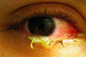 Почему образуется гной вокруг глаз