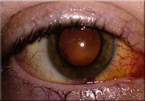 Пациент с патологией хориоретинит
