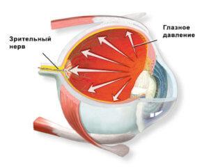 Что такое глазное давление