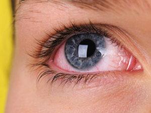 Красные глаза - о чем говорит данный симптом