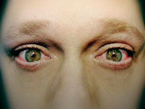 Сильное жжение в глазах