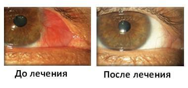 До и после лечения птергиума