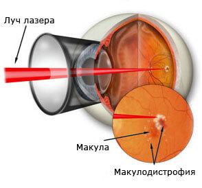 Как лечиться макулодистрофия лазером