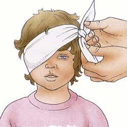 Первая помощь при травме глаза у ребенка