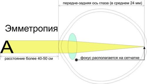 Схематичное изображение определения эмметропии