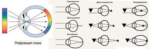 Что такое рефракция глаза