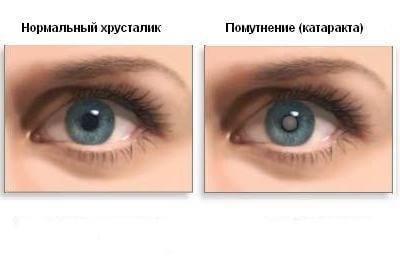 Нормальный хрусталик и катаракта