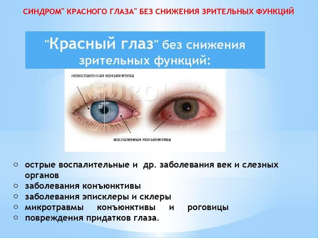 Синдром красного глаза без снижения зрительных функций
