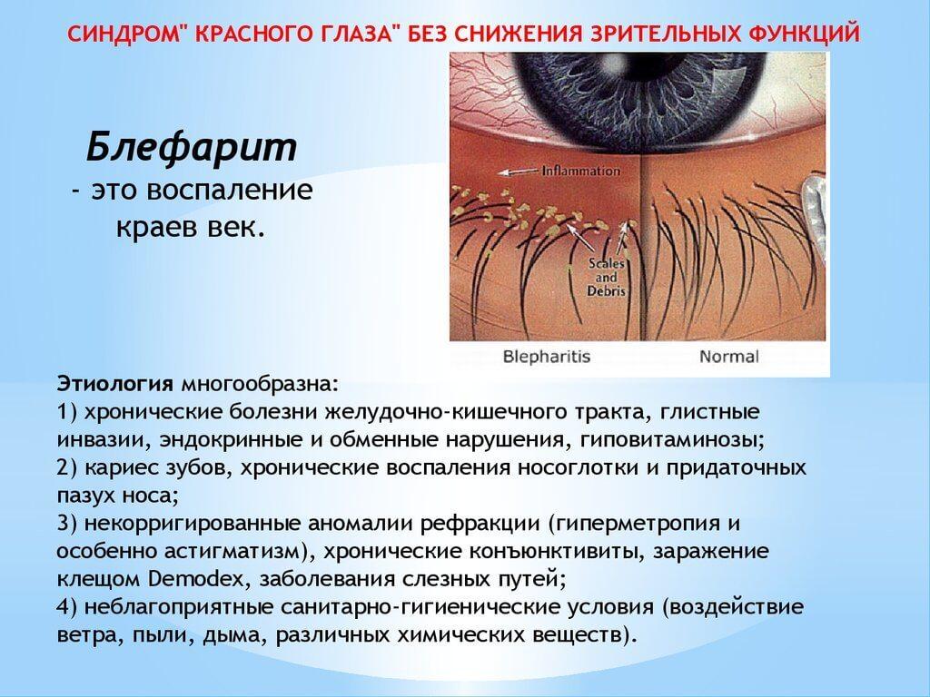 Красные глаза как симптом блефарита
