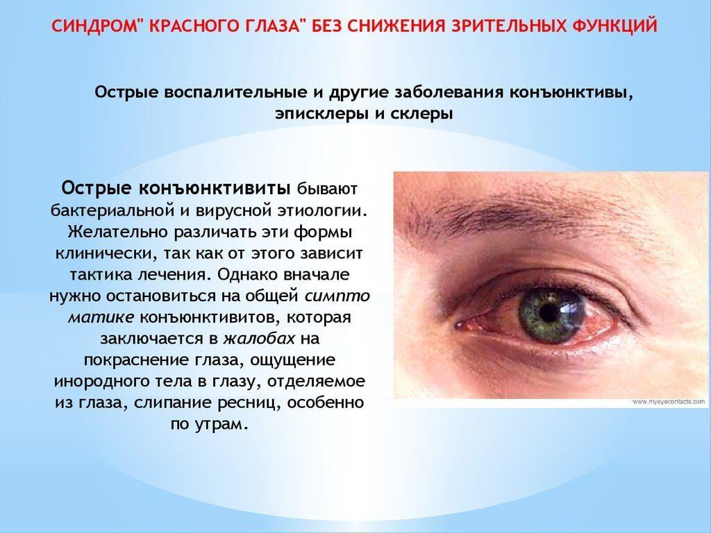 Острые воспалительные заболевания конъюнктивы и склеры