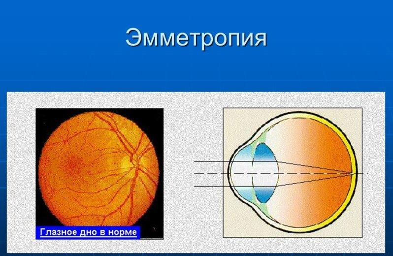 Глазное дно и рефракция