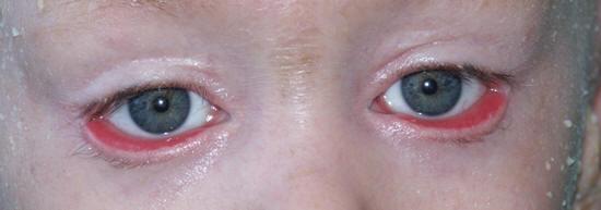 Как выглядит эктропион век обоих глаз
