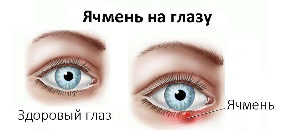 Схематичное изображение патологии и здорового глаза