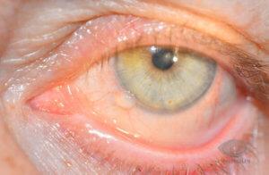 Желтое пятно на глазу