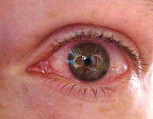 Визин алерджи при аллергии
